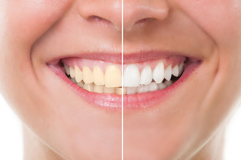 Teeth Whitening - Smile Dental Works, Schaumburg Dentist